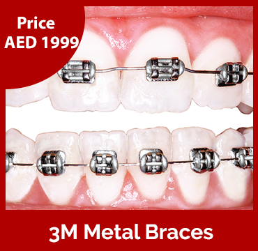 Price-images-3M-Metal-Braces