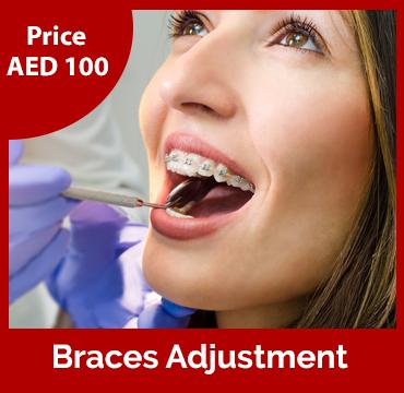 Price-images-Braces-Adjustment