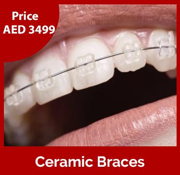 Price-images-Ceramic-Braces