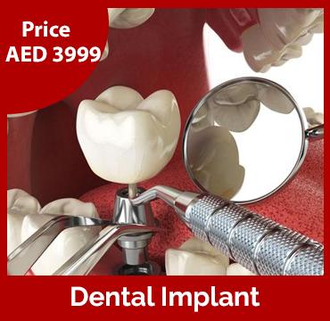 Price-images-Dental-Implant