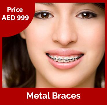 Price-images-Metal-Braces