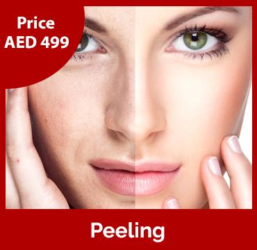 Price-images-Peeling