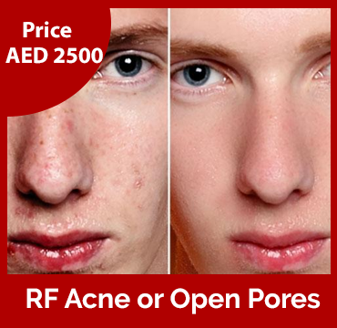 Price-images-RF-Acne-or-Open-Pores