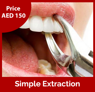 Price-images-Simple-Extraction