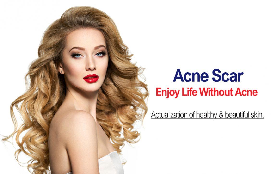 Acne Scar Mobile Banner