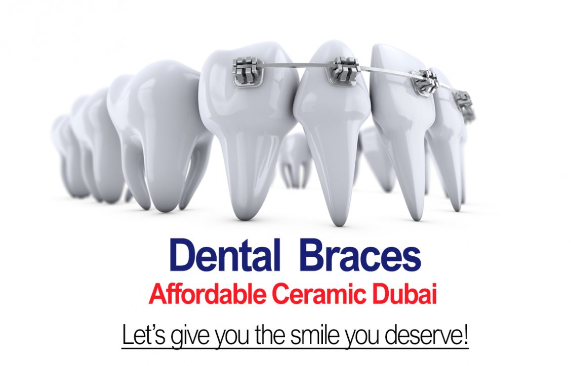 Dental Braces Mobile Banner