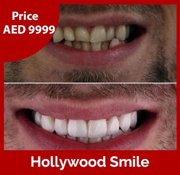 Hollywood Smile Price