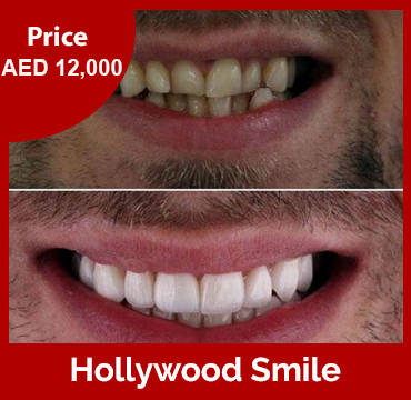 Price-images-Hollywood-Smile copy